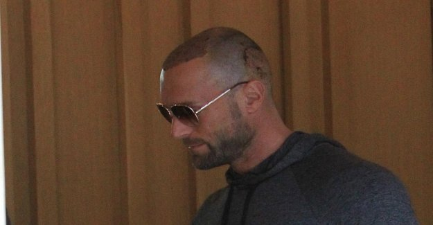 Bastian Yotta a subi une Greffe de cheveux