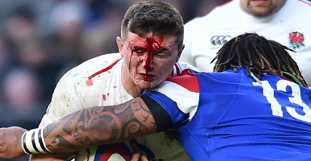 Rugby: l'Angleterre, Tom Curry subit des Tête-Violation