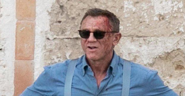 Bond, Star Daniel Craig: couvert de sang dans la Pause de midi