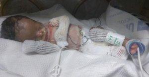 Etats-UNIS: un Bébé qui manque à la Naissance, la Majorité de la Peau
