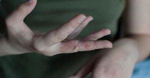 La gale: Que faire contre la Maladie...