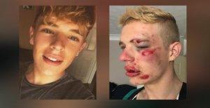 Parce qu'il est gay - jeune homme de 22 Ans, brutalement battu